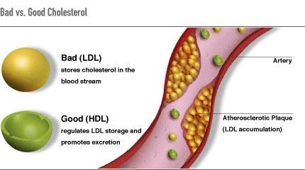cholesterol line art, pic